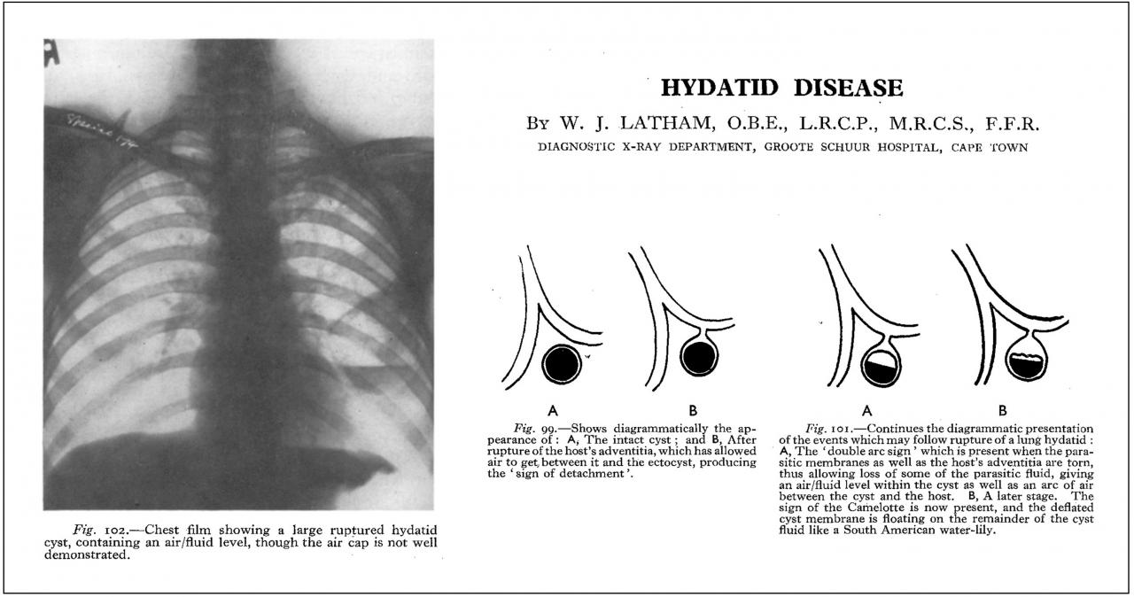 "Extract from ""Hydatid Disease"" by WJ Latham"