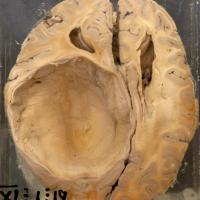 Hydatid Cyst of the Brain
