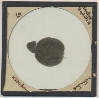 Hydatid Photomicrograph
